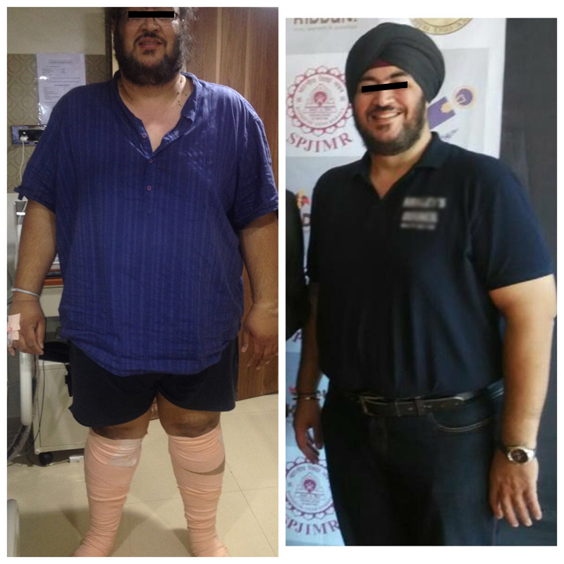 bypass surgery for weight loss mumbai