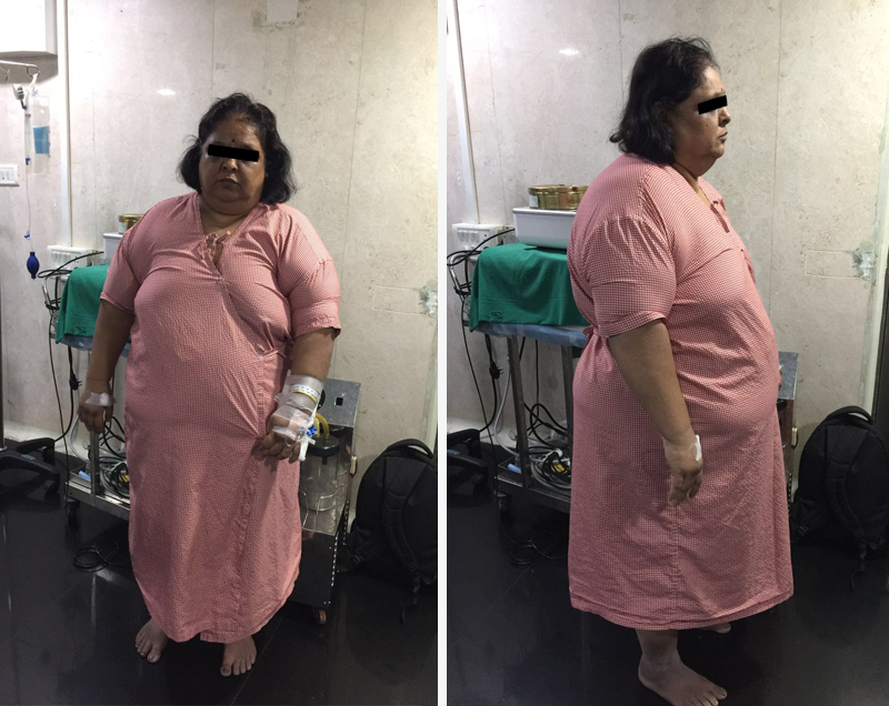 mini gastric bypass surgery in mumbai